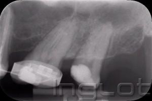 Endodoncja INGLOT