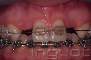 Implanty Krakow